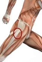 smerter på ydersiden af hoften